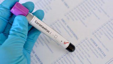 Photo of Коронавірус в Україні та світі: кількість хворих на 7 квітня