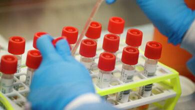 Photo of В Україні 475 випадків коронавірусу, ще одна людина померла