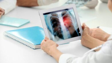 Photo of На коронавірус перевірили пацієнтів із пневмонією в Івано-Франківську: 57 позитивних результатів
