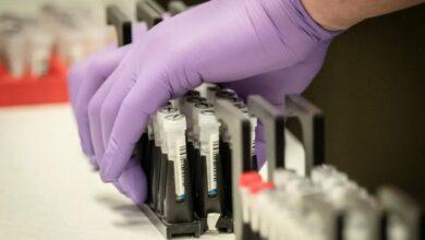 Photo of В Україні кількість інфікованих коронавірусом зросла до 356 осіб