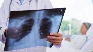 Photo of За добу до міськлікарні поступили 4 осіб з пневмонією