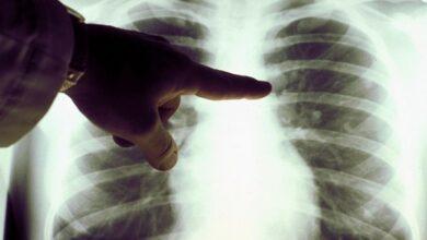 Photo of За добу в міськлікарні побільшало хворих на пневмонію