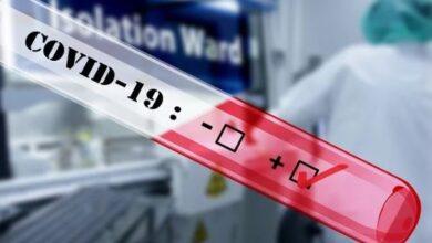 Photo of На Чернігівщині є перший випадок коронавірусу: експрес-тест показав позитивний результат