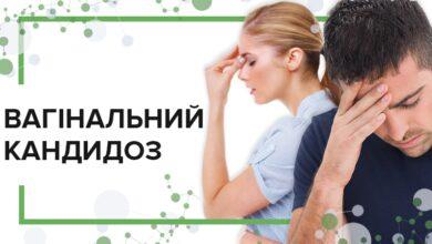 Photo of Все про молочницю: симптоми, причини, профілактика та лікування