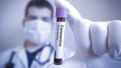 Photo of Понад 100 людей під загрозою: померлу жінку від коронавірусу поховали без дотримання норм