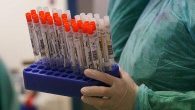 Photo of Як пройти тестування на коронавірус, якщо лікар відмовляється ставити підозру: рекомендації МОЗ