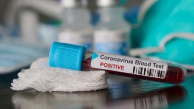 Photo of У Львові від коронавірусу померли двоє пацієнтів