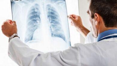 Photo of А хворі з пневмонією продовжують поступати до міськлікарні…