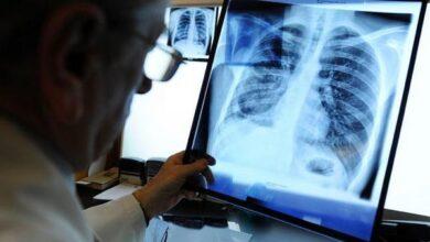 Photo of Захворюваність на туберкульоз у Ніжині зросла майже вдвічі