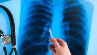 Photo of Захворюваність на туберкульоз у Ніжині та районі – статистика лякає