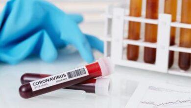 Photo of На Чернігівщині +6 випадків захворювання на коронавірус