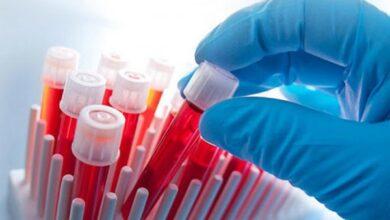 Photo of Де у Ніжині тестуватимуть на ВІЛ і гепатит С?