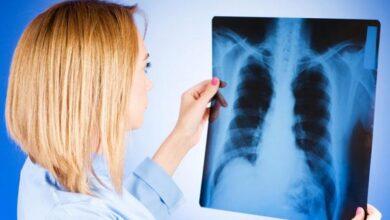 Photo of Туберкульоз не відступає: скільки людей захворіли в Ніжині та районі?