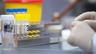 Photo of Завтра ніжинських медиків навчатимуть працювати в ІФА лабораторії