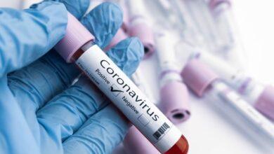 Photo of 876 за добу: захворюваність Covid-19 в Україні тримається на високому рівні