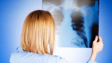 Photo of Ніжинщина: зростає кількість хворих з вірусними пневмоніями