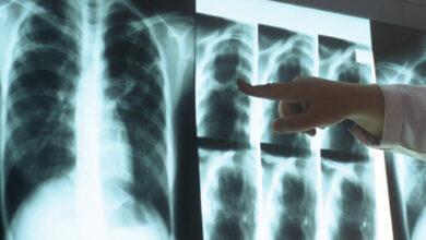 Photo of За 7 місяців у Ніжині додалося 19 хворих на туберкульоз