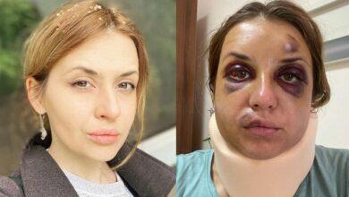 Photo of Це я винен, що не врятував тебе: син Лугової проходить реабілітацію після нападу в потязі