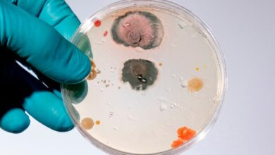 Photo of Пожирає мозок: у США виявили смертельний мікроб у міському водогоні