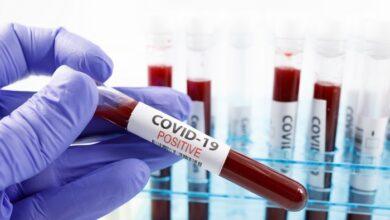 Photo of Скільки людей з коронавірусом перебувають у Ніжинській міськлікарні?