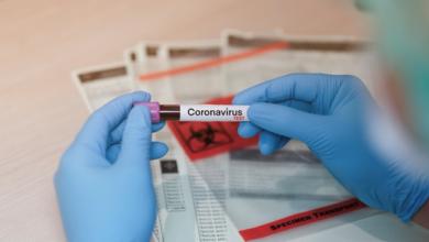 Photo of Рекорд третій день поспіль: у Чехії знову понад 15 тис. випадків Covid-19 за добу